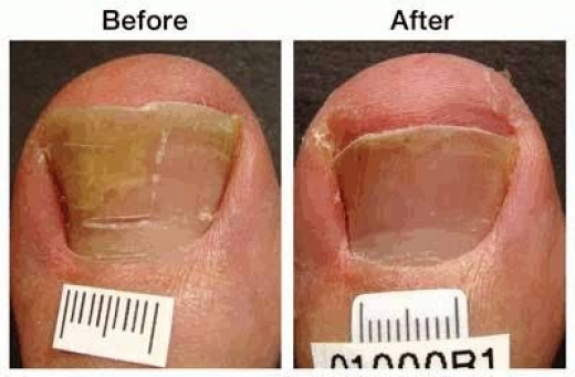 Photo by Toenail fungus laser certified Dr. Martin G. Miller for Toenail fungus laser certified Dr. Martin G. Miller